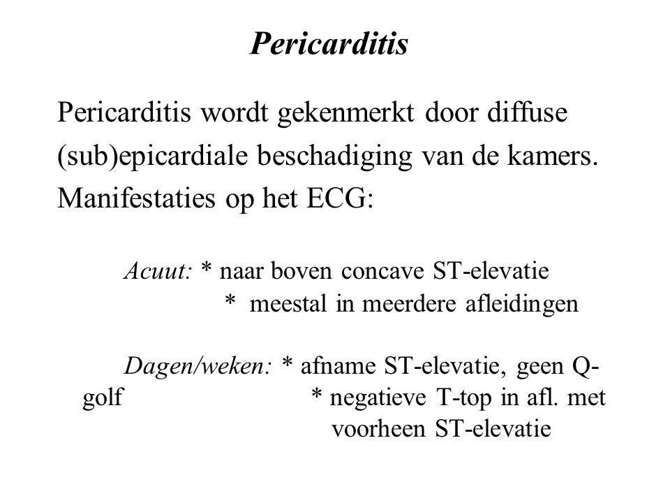 Pericarditis Pericarditis wordt gekenmerkt door diffuse (sub)epicardiale beschadiging van de kamers.
