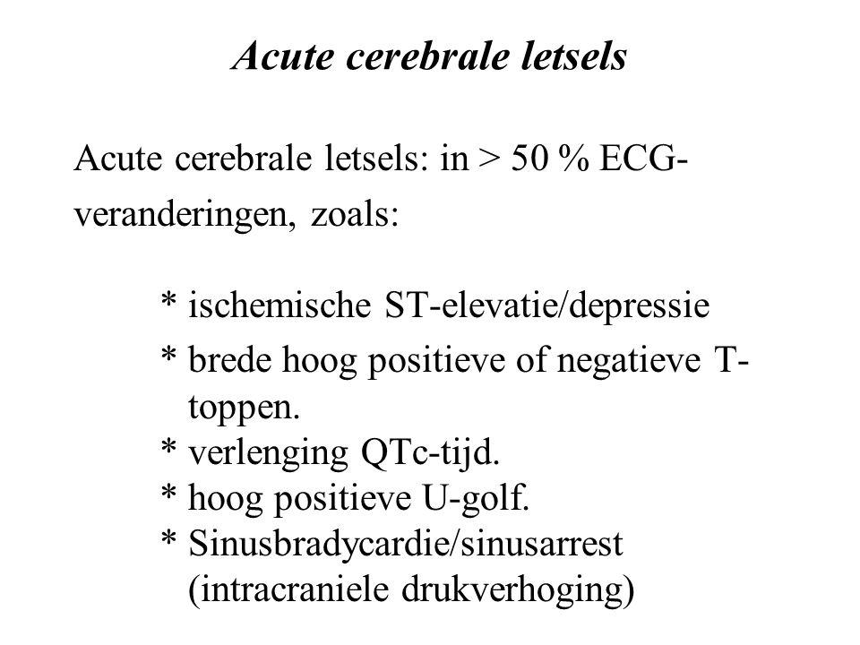 Acute cerebrale letsels Acute cerebrale letsels: in > 50 % ECG- veranderingen, zoals: * ischemische ST-elevatie/depressie * brede hoog positieve of negatieve T- toppen.