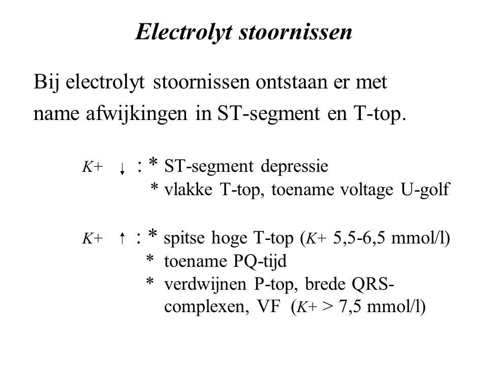 Electrolyt stoornissen Bij electrolyt stoornissen ontstaan er met name afwijkingen in ST-segment en T-top.