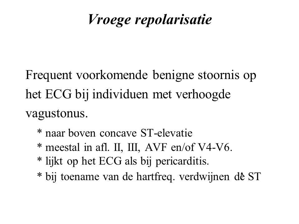 Vroege repolarisatie Frequent voorkomende benigne stoornis op het ECG bij individuen met verhoogde vagustonus.