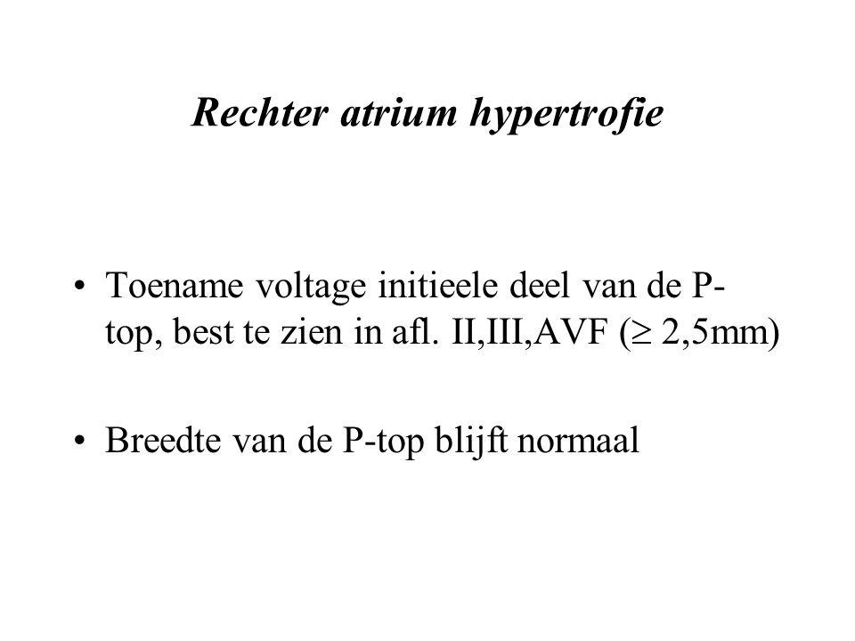 Rechter atrium hypertrofie Toename voltage initieele deel van de P- top, best te zien in afl.