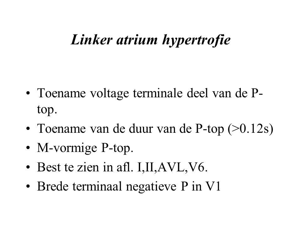 Linker atrium hypertrofie Toename voltage terminale deel van de P- top.