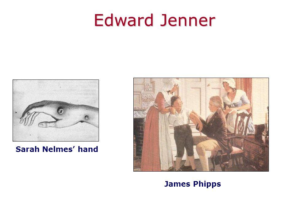 Sarah Nelmes' hand James Phipps Edward Jenner