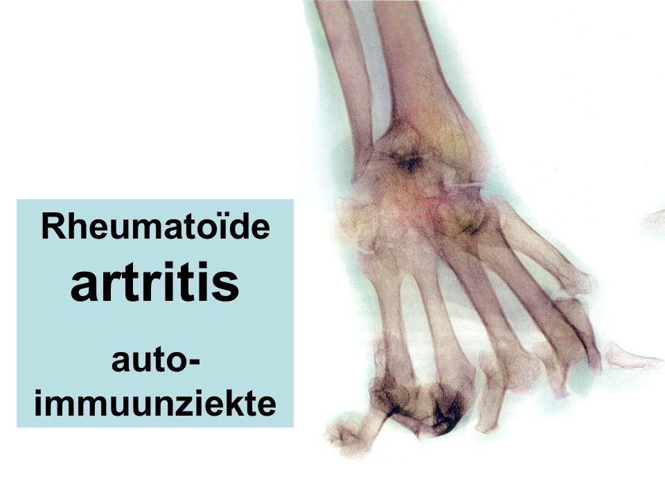 Rheumatoïde artritis auto- immuunziekte