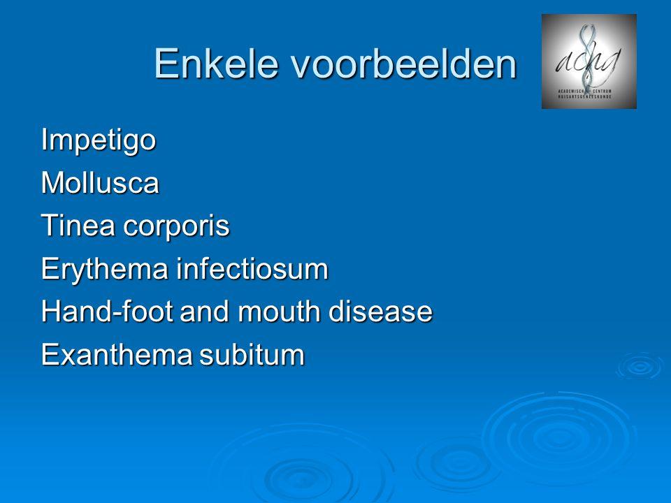 Enkele voorbeelden ImpetigoMollusca Tinea corporis Erythema infectiosum Hand-foot and mouth disease Exanthema subitum