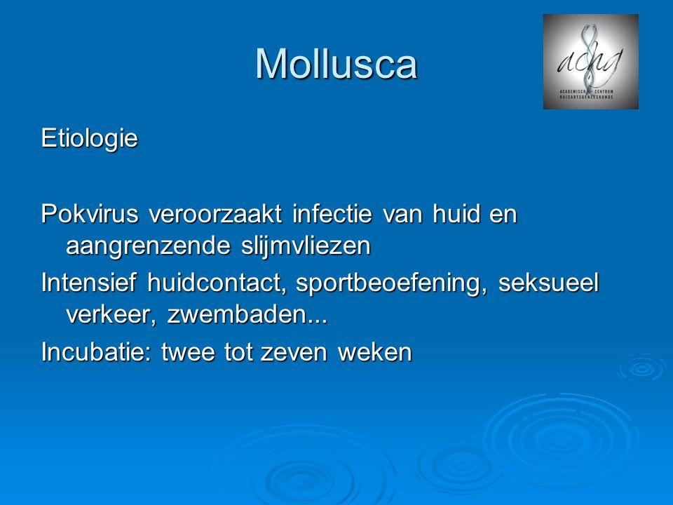 Mollusca Etiologie Pokvirus veroorzaakt infectie van huid en aangrenzende slijmvliezen Intensief huidcontact, sportbeoefening, seksueel verkeer, zwembaden...