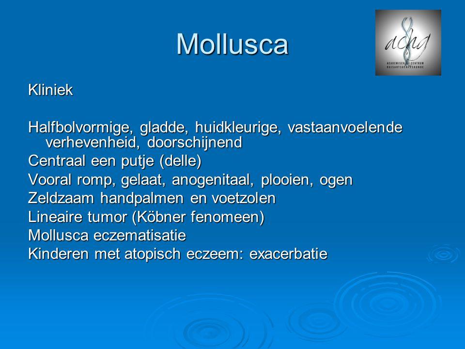 Mollusca Kliniek Halfbolvormige, gladde, huidkleurige, vastaanvoelende verhevenheid, doorschijnend Centraal een putje (delle) Vooral romp, gelaat, anogenitaal, plooien, ogen Zeldzaam handpalmen en voetzolen Lineaire tumor (Köbner fenomeen) Mollusca eczematisatie Kinderen met atopisch eczeem: exacerbatie