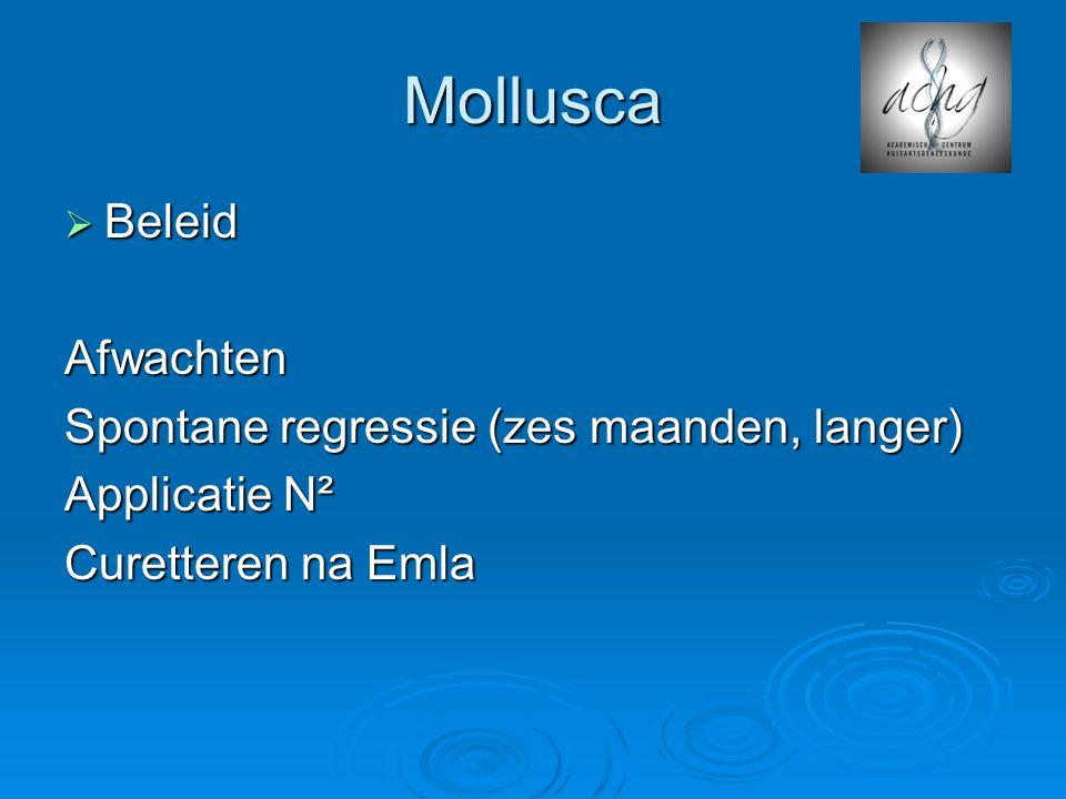 Mollusca  Beleid Afwachten Spontane regressie (zes maanden, langer) Applicatie N² Curetteren na Emla