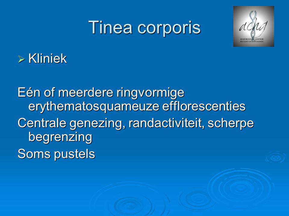Tinea corporis  Kliniek Eén of meerdere ringvormige erythematosquameuze efflorescenties Centrale genezing, randactiviteit, scherpe begrenzing Soms pu