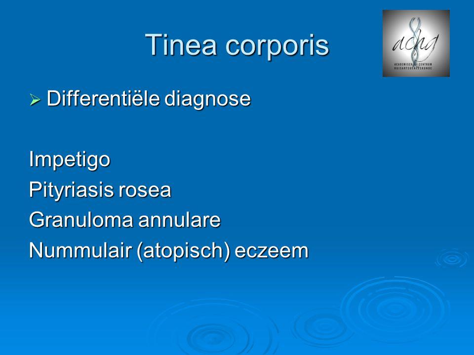 Tinea corporis  Differentiële diagnose Impetigo Pityriasis rosea Granuloma annulare Nummulair (atopisch) eczeem