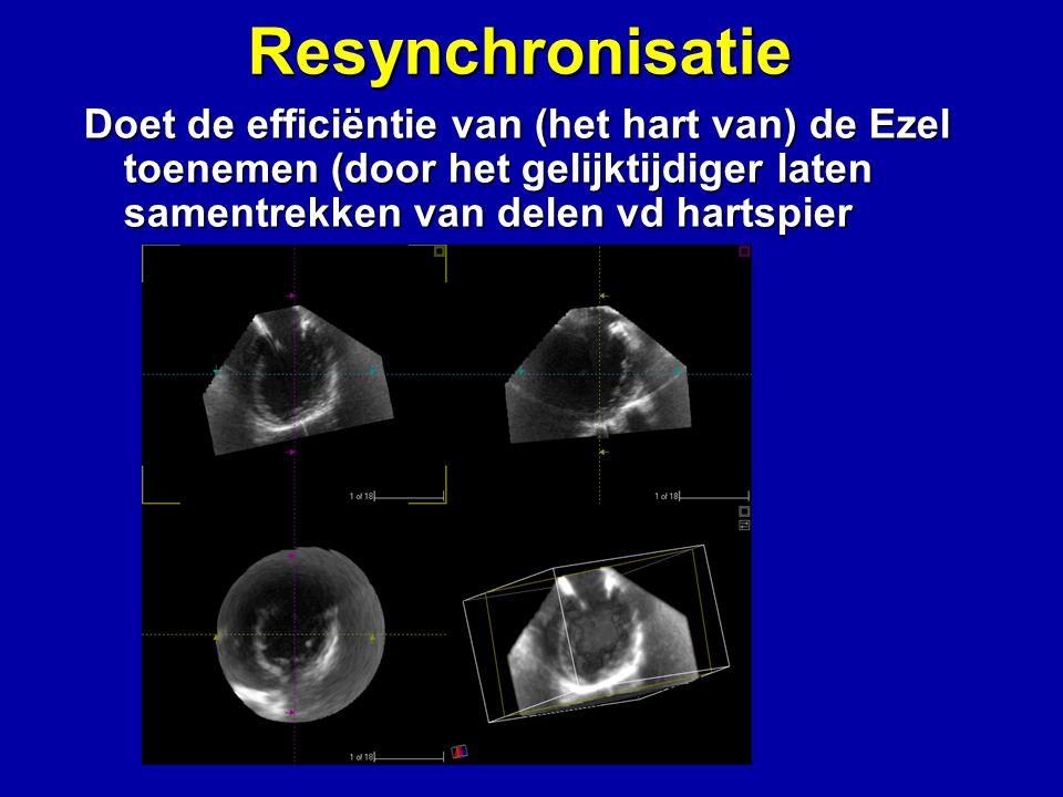 Resynchronisatie Doet de efficiëntie van (het hart van) de Ezel toenemen (door het gelijktijdiger laten samentrekken van delen vd hartspier