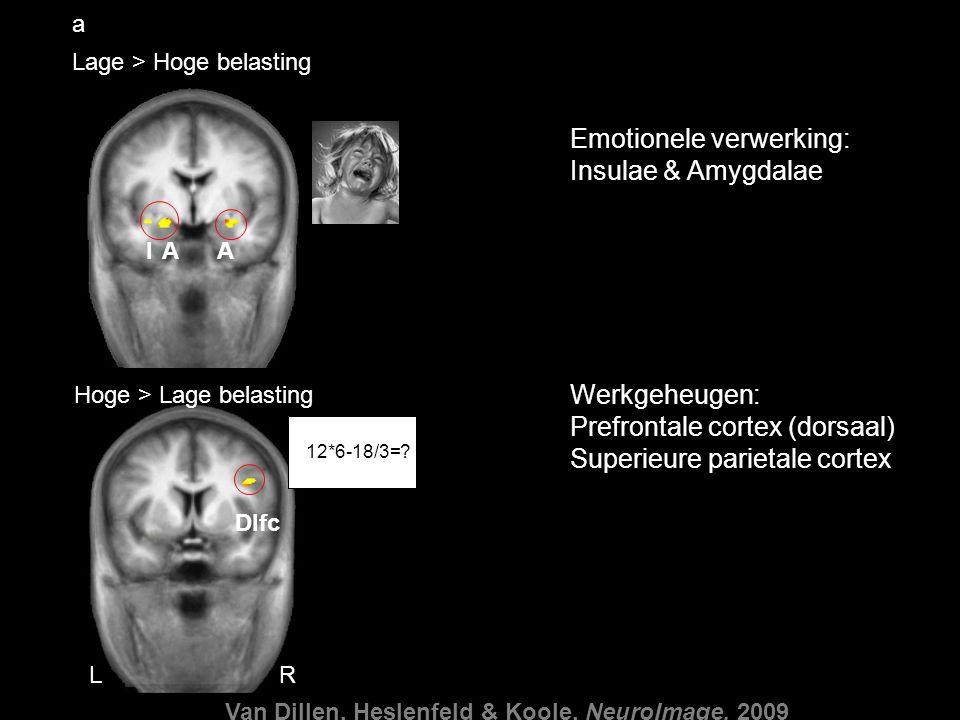 0.2 0 0.4 0.6 0481216 -0.4 0 0.4 0.8 1.2 0481216 Lage > Hoge belasting Hoge > Lage belasting RL Dlfc AIA a b Right amygdala Right dorsolateral frontal