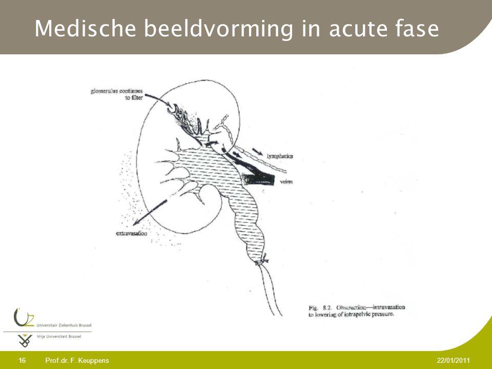 Prof.dr. F. Keuppens 16 22/01/2011 Medische beeldvorming in acute fase