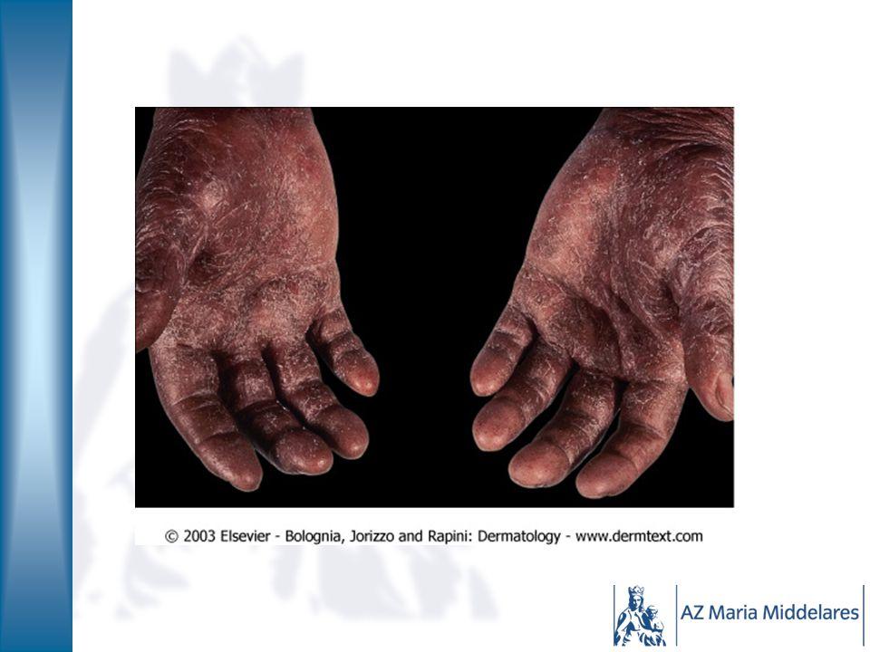 Irritatie versus allergie IRRITATIE: schade door toxische stoffen oplosmiddelen, detergenten… Handen: vooral buigzijde Langdurig herhaald contact Bij iedereen ALLERGIE: volgens type immunologie Kortdurend contact met kleine hoeveelheid stof Handen: vooral strekzijde Bij bepaalde personen