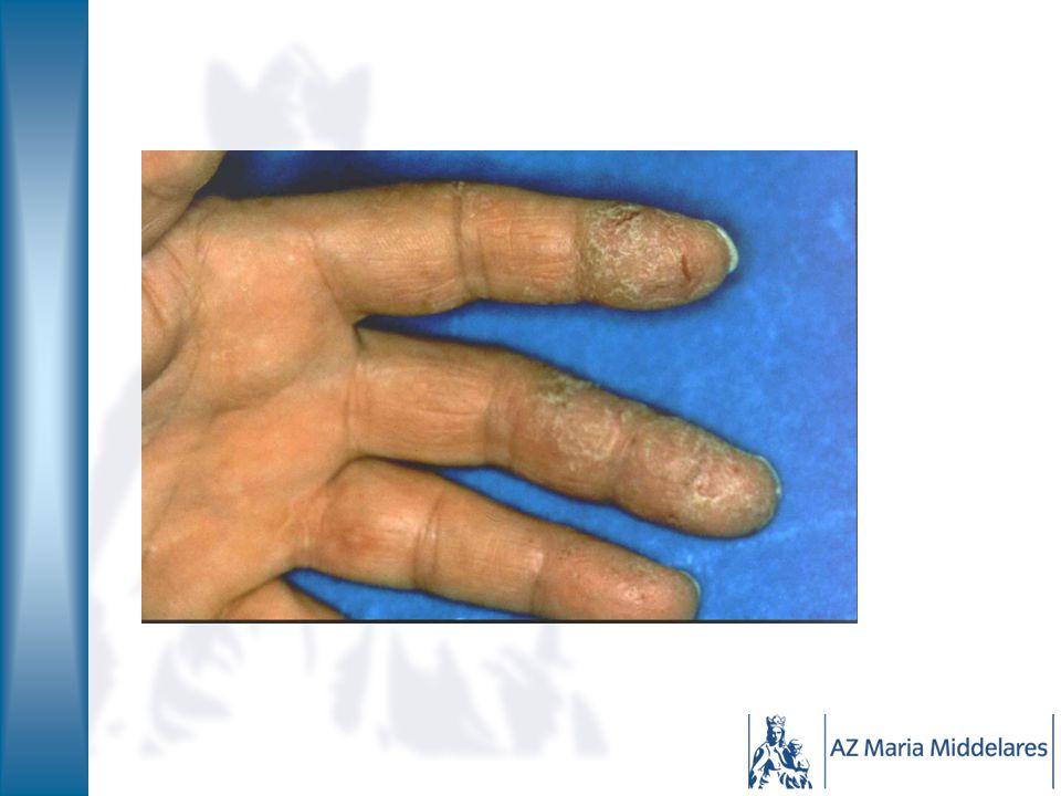 Atopie Immunologisch type 1, klinisch dermatologisch type 4 'allergische constitutie' Familiaal voorkomend, genetisch bepaald Geboorte: droge huid Vanaf 3 maand: eczeem hooikoorts en astma Gevoelig voor irritatie