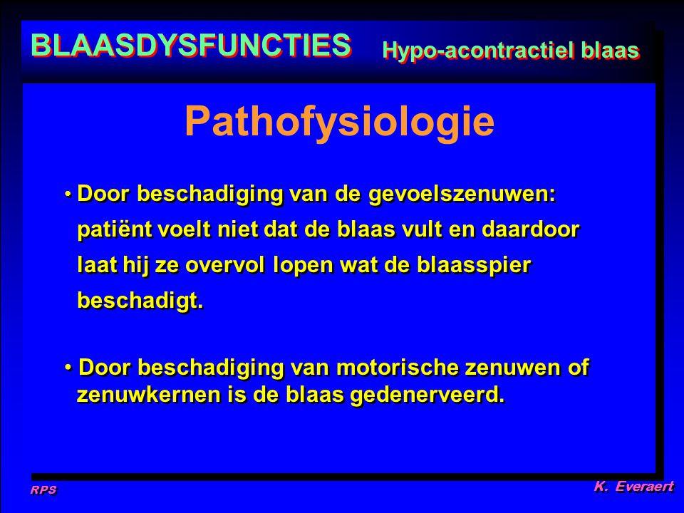 RPS K. Everaert Door beschadiging van de gevoelszenuwen: patiënt voelt niet dat de blaas vult en daardoor laat hij ze overvol lopen wat de blaasspier