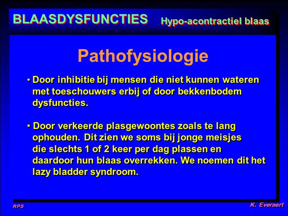 RPS K. Everaert Door inhibitie bij mensen die niet kunnen wateren met toeschouwers erbij of door bekkenbodem dysfuncties. Door verkeerde plasgewoontes