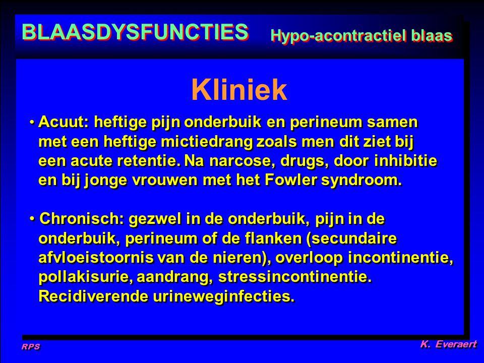 RPS K. Everaert Acuut: heftige pijn onderbuik en perineum samen met een heftige mictiedrang zoals men dit ziet bij een acute retentie. Na narcose, dru