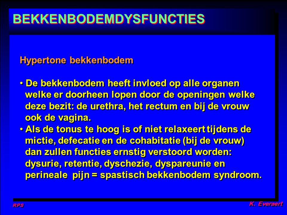 RPS K. Everaert Hypertone bekkenbodem De bekkenbodem heeft invloed op alle organen welke er doorheen lopen door de openingen welke deze bezit: de uret