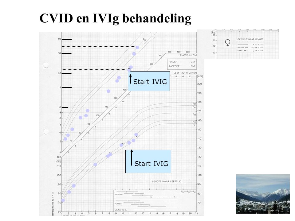 Start IVIG CVID en IVIg behandeling