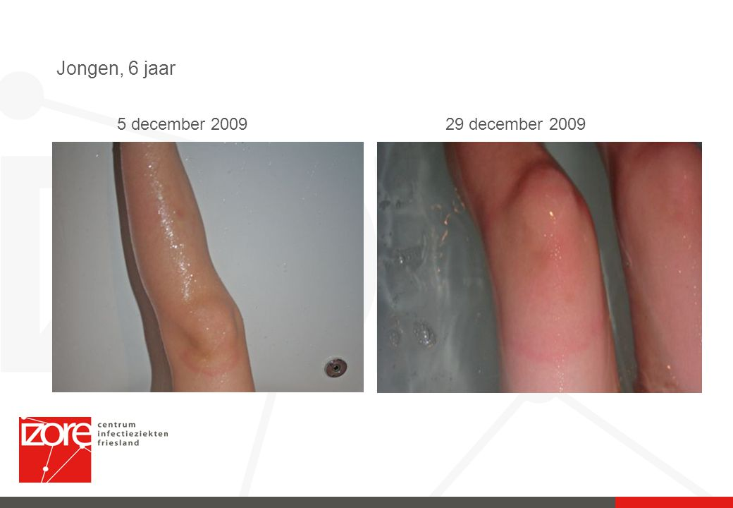 Jongen, 6 jaar 29 december 20095 december 2009