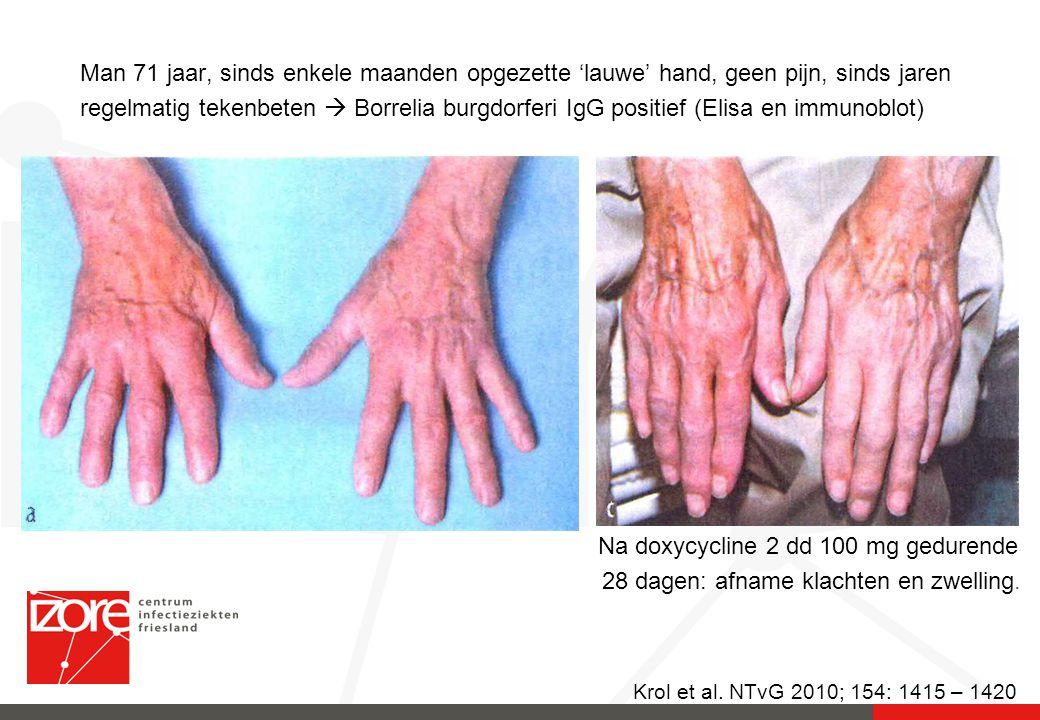 Krol et al. NTvG 2010; 154: 1415 – 1420 Man 71 jaar, sinds enkele maanden opgezette 'lauwe' hand, geen pijn, sinds jaren regelmatig tekenbeten  Borre