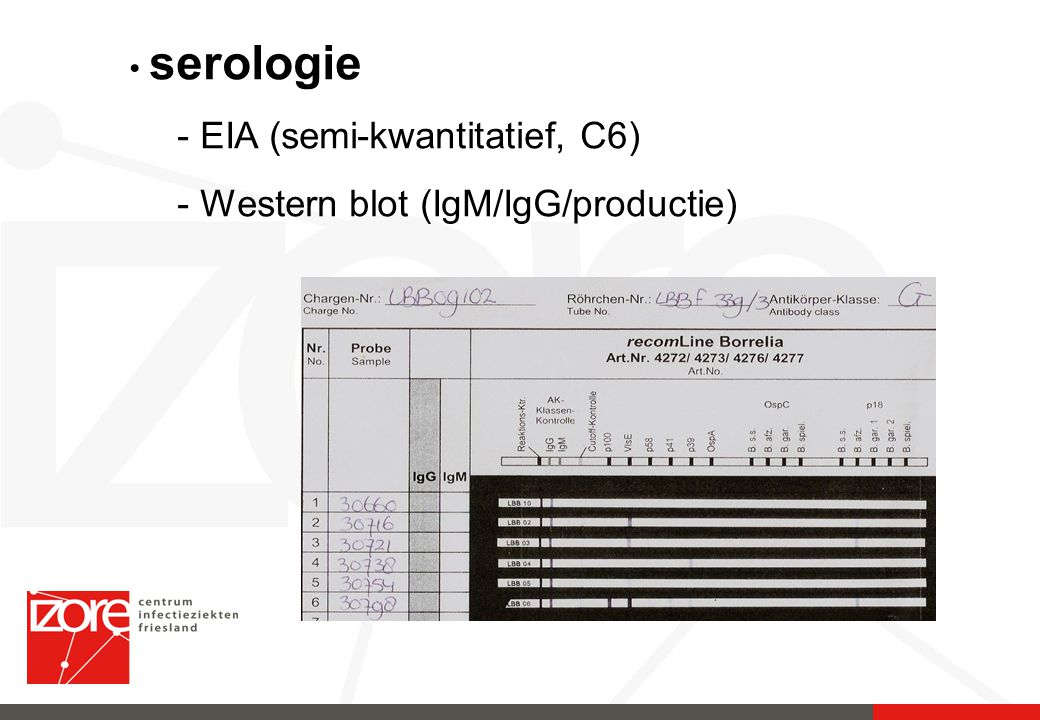 serologie - EIA (semi-kwantitatief, C6) - Western blot (IgM/IgG/productie)