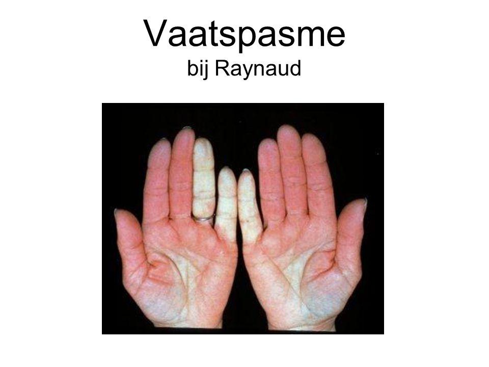 Vaatspasme niet alleen bij Raynaud Andere 'zichtbare' vaatspasme (huid) –Acrocyanose –Livedo reticularis Maar ook 'van binnen' –Coronairvat spasme –Migraine Vaatspasme kan dus in verschillende vaatgebieden voorkomen