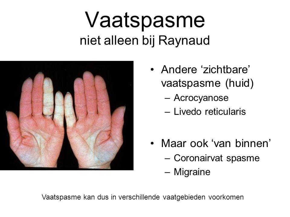 Wat is Raynaud? Begrippen  Fenomeen van Raynaud  Ziekte van Raynaud  Syndroom van Raynaud