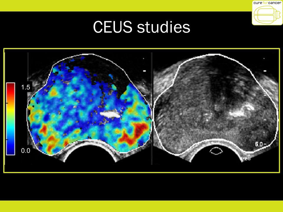 CEUS studies 8