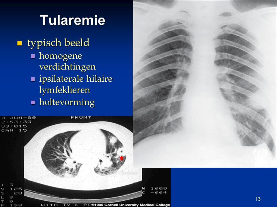Tularemie: andere klinische vormen ulcus bacteriemie ulceroglandulair glandulair - necrotische lymfeklier oculoglandulair