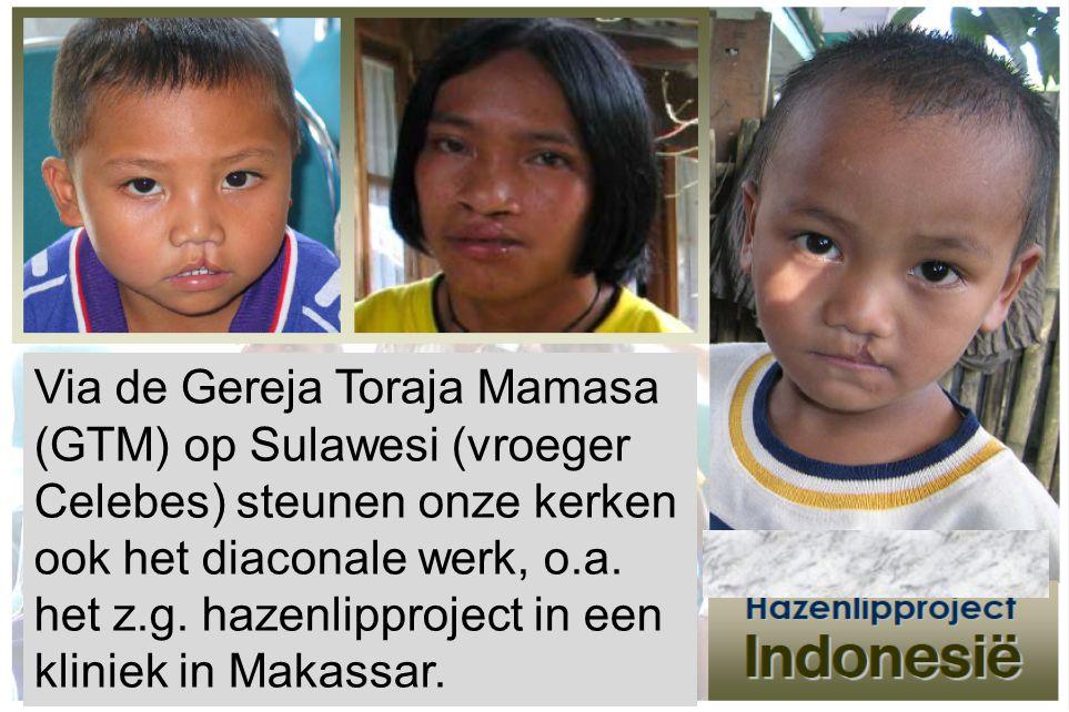 Via de Gereja Toraja Mamasa (GTM) op Sulawesi (vroeger Celebes) steunen onze kerken ook het diaconale werk, o.a. het z.g. hazenlipproject in een klini