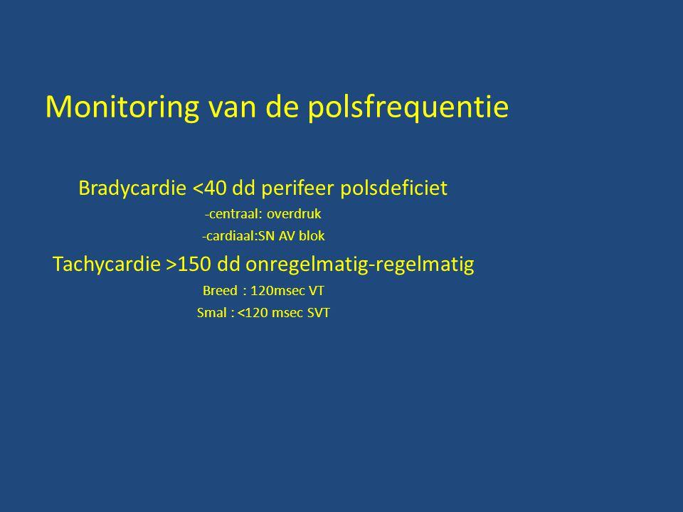 Monitoring van de polsfrequentie Bradycardie <40 dd perifeer polsdeficiet -centraal: overdruk -cardiaal:SN AV blok Tachycardie >150 dd onregelmatig-regelmatig Breed : 120msec VT Smal : <120 msec SVT