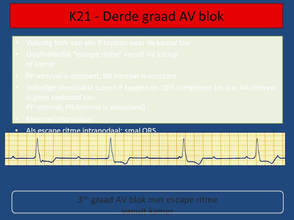 Volledig blok van alle P toppen naar de kamer toe Onafhankelijk escape ritme vanuit AV knoop of kamer PP interval is constant; RR interval is constant Volledige dissociatie tussen P toppen en QRS complexen (m.a.w.
