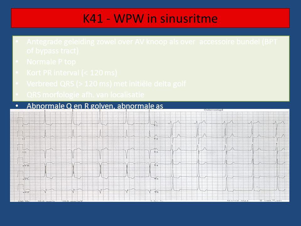 K41 - WPW in sinusritme Antegrade geleiding zowel over AV knoop als over accessoire bundel (BPT of bypass tract) Normale P top Kort PR interval (< 120 ms) Verbreed QRS (> 120 ms) met initiële delta golf QRS morfologie afh.