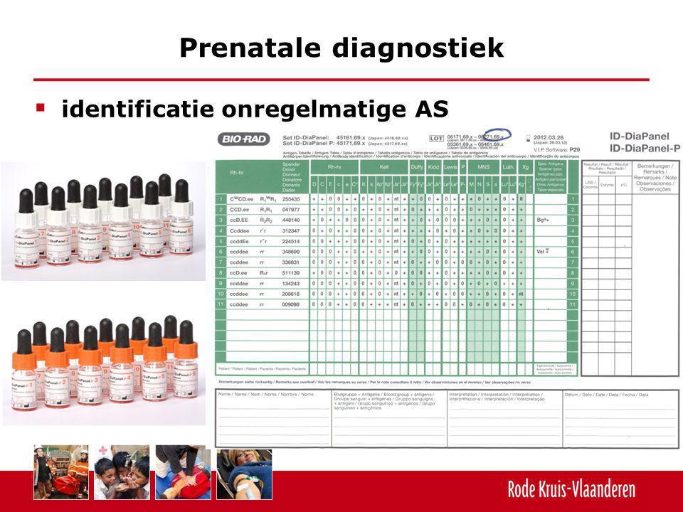  identificatie onregelmatige AS Prenatale diagnostiek