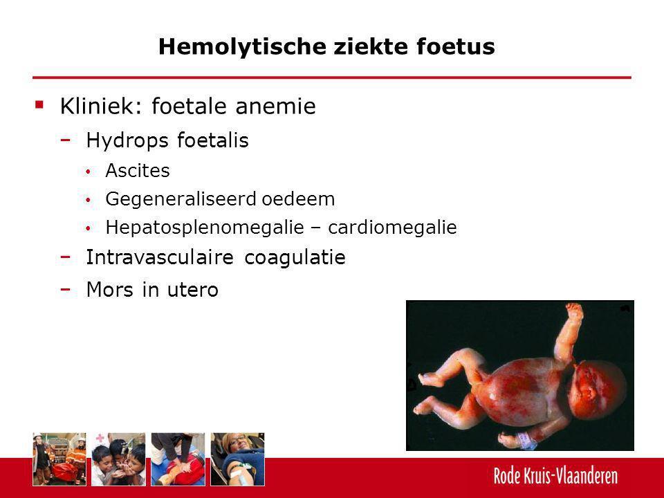  Kliniek: foetale anemie − Hydrops foetalis Ascites Gegeneraliseerd oedeem Hepatosplenomegalie – cardiomegalie − Intravasculaire coagulatie − Mors in