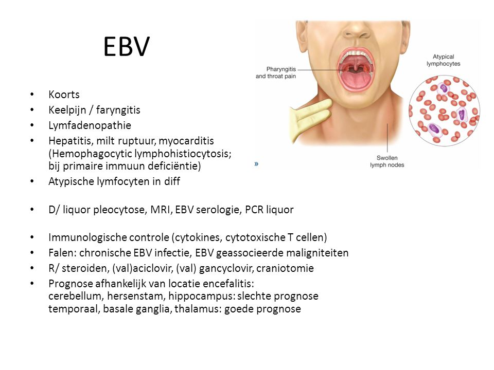EBV Koorts Keelpijn / faryngitis Lymfadenopathie Hepatitis, milt ruptuur, myocarditis (Hemophagocytic lymphohistiocytosis; bij primaire immuun deficië