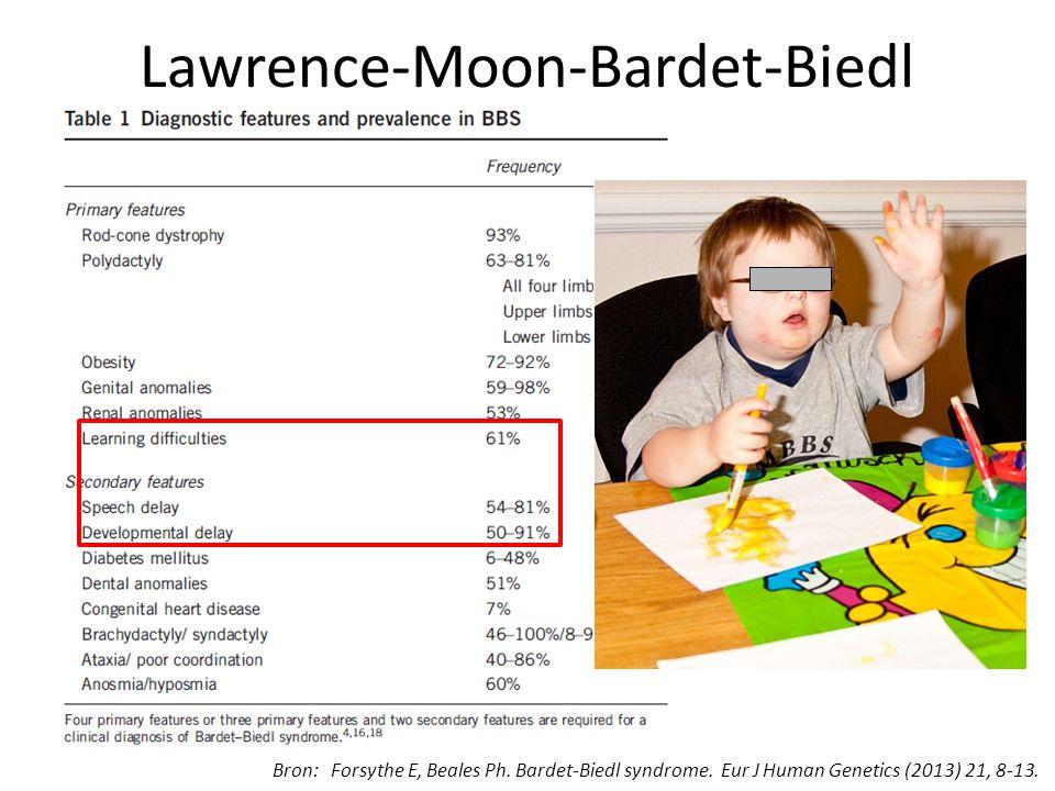 Lawrence-Moon-Bardet-Biedl Bron: Forsythe E, Beales Ph. Bardet-Biedl syndrome. Eur J Human Genetics (2013) 21, 8-13.