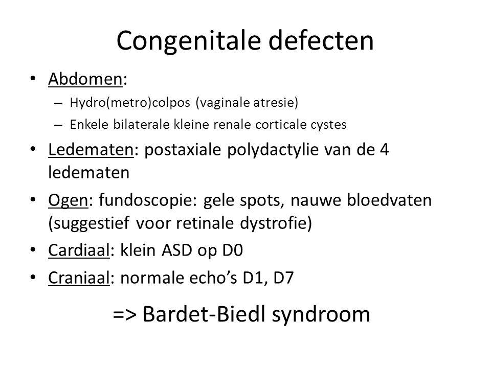 Congenitale defecten Abdomen: – Hydro(metro)colpos (vaginale atresie) – Enkele bilaterale kleine renale corticale cystes Ledematen: postaxiale polydac