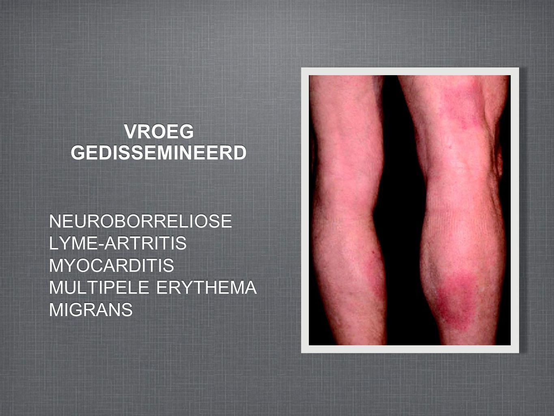 VROEG GEDISSEMINEERD NEUROBORRELIOSE LYME-ARTRITIS MYOCARDITIS MULTIPELE ERYTHEMA MIGRANS NEUROBORRELIOSE LYME-ARTRITIS MYOCARDITIS MULTIPELE ERYTHEMA MIGRANS