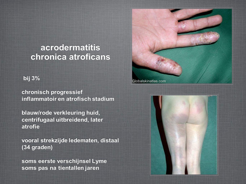 acrodermatitis chronica atroficans bij 3% chronisch progressief inflammatoir en atrofisch stadium blauw/rode verkleuring huid, centrifugaal uitbreidend, later atrofie vooral strekzijde ledematen, distaal (34 graden) soms eerste verschijnsel Lyme soms pas na tientallen jaren bij 3% chronisch progressief inflammatoir en atrofisch stadium blauw/rode verkleuring huid, centrifugaal uitbreidend, later atrofie vooral strekzijde ledematen, distaal (34 graden) soms eerste verschijnsel Lyme soms pas na tientallen jaren