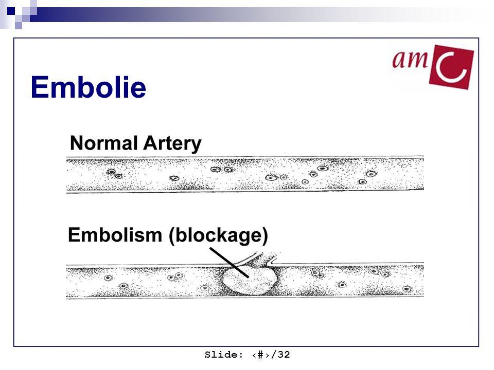 Slide: ‹#›/32 Embolie