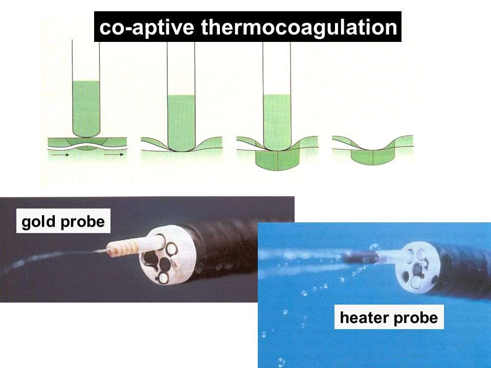gold probe heater probe co-aptive thermocoagulation