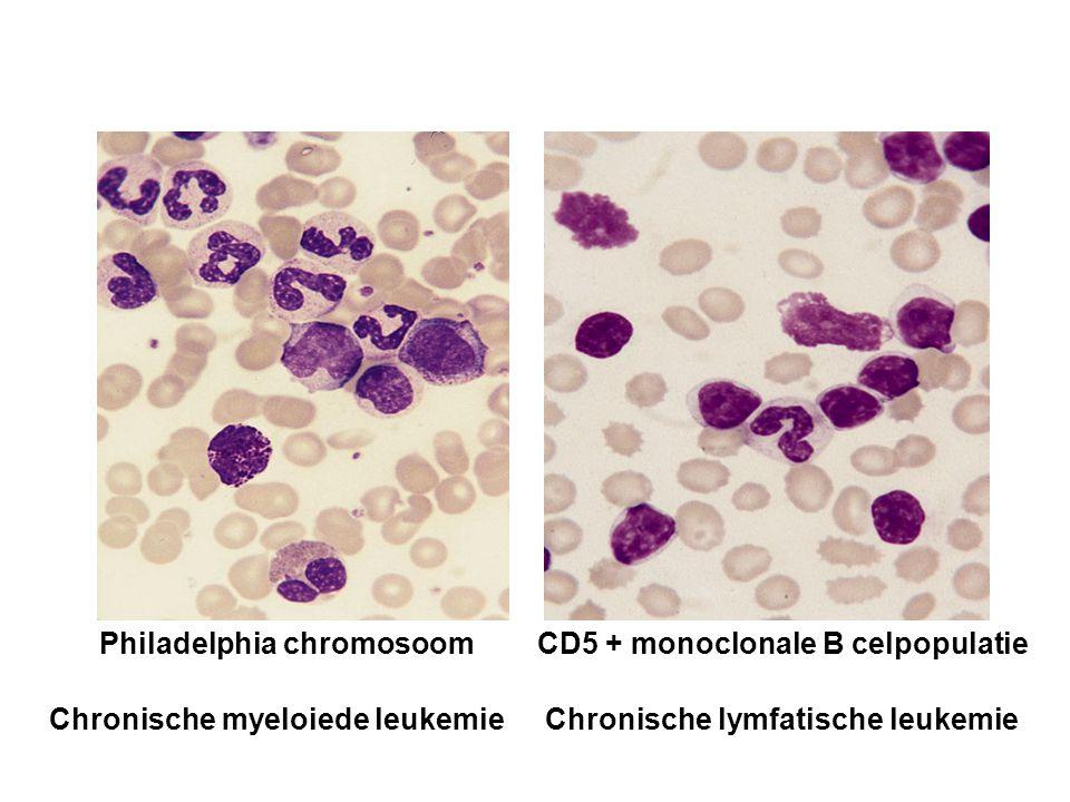 Chronische myeloiede leukemie Chronische lymfatische leukemie Philadelphia chromosoomCD5 + monoclonale B celpopulatie