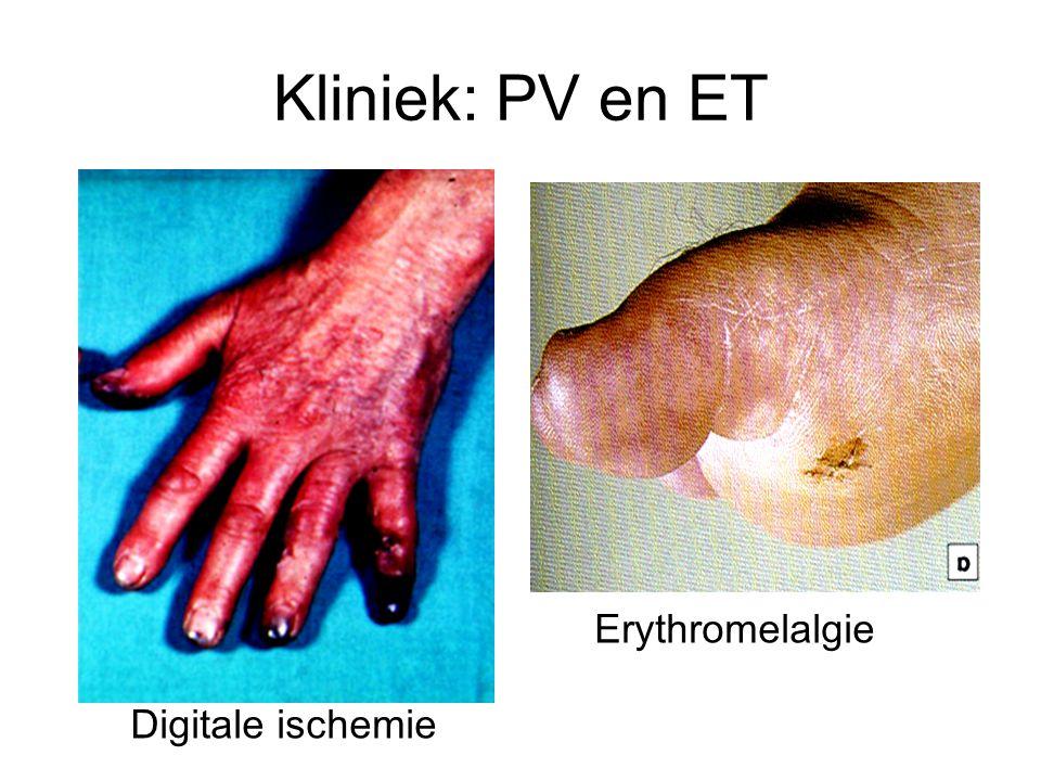 Kliniek: PV en ET Digitale ischemie Erythromelalgie
