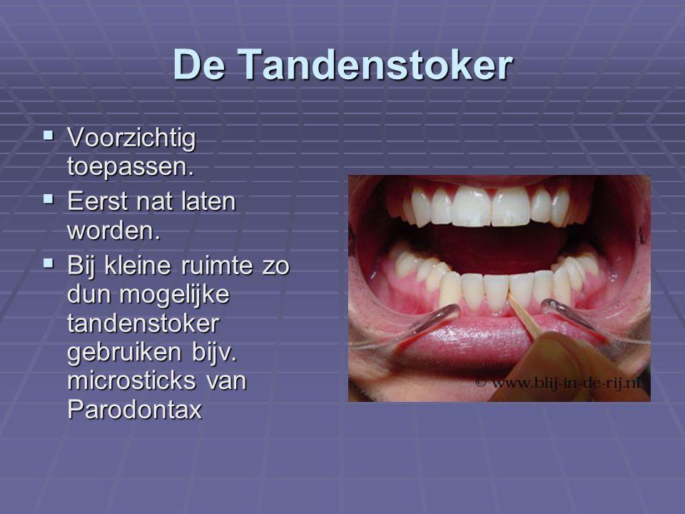De Tandenstoker  Voorzichtig toepassen.  Eerst nat laten worden.  Bij kleine ruimte zo dun mogelijke tandenstoker gebruiken bijv. microsticks van P