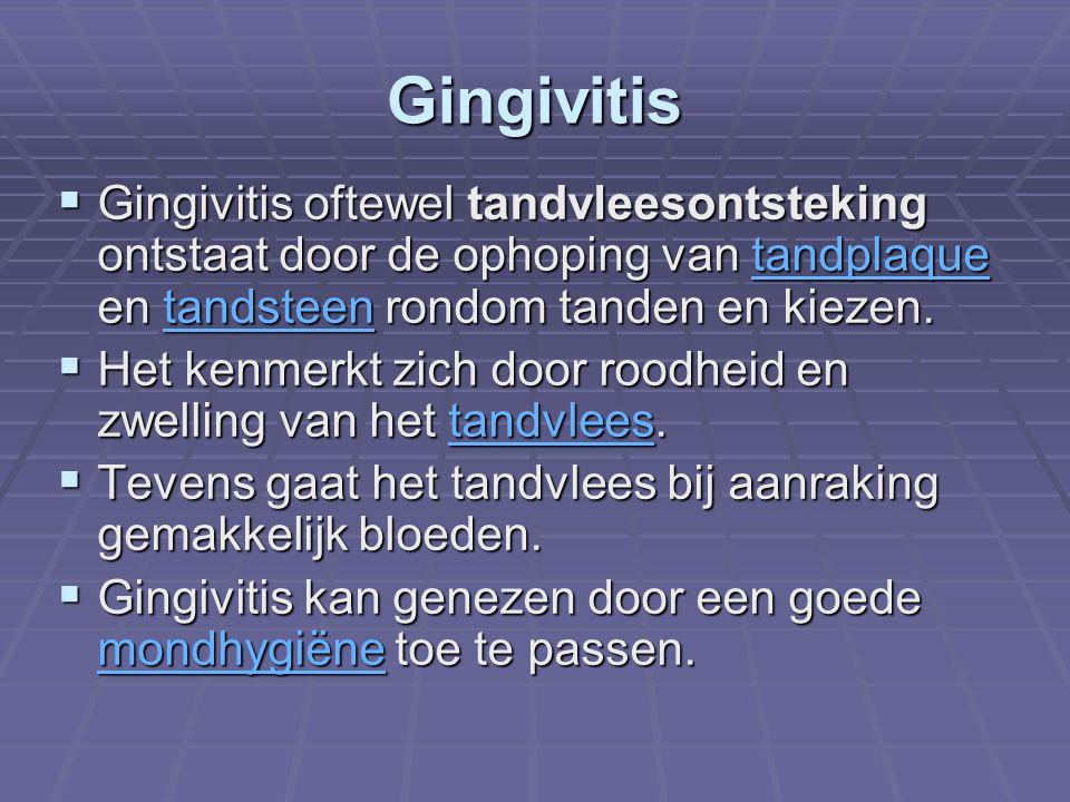Gingivitis  Gingivitis oftewel tandvleesontsteking ontstaat door de ophoping van tandplaque en tandsteen rondom tanden en kiezen. tandplaquetandsteen