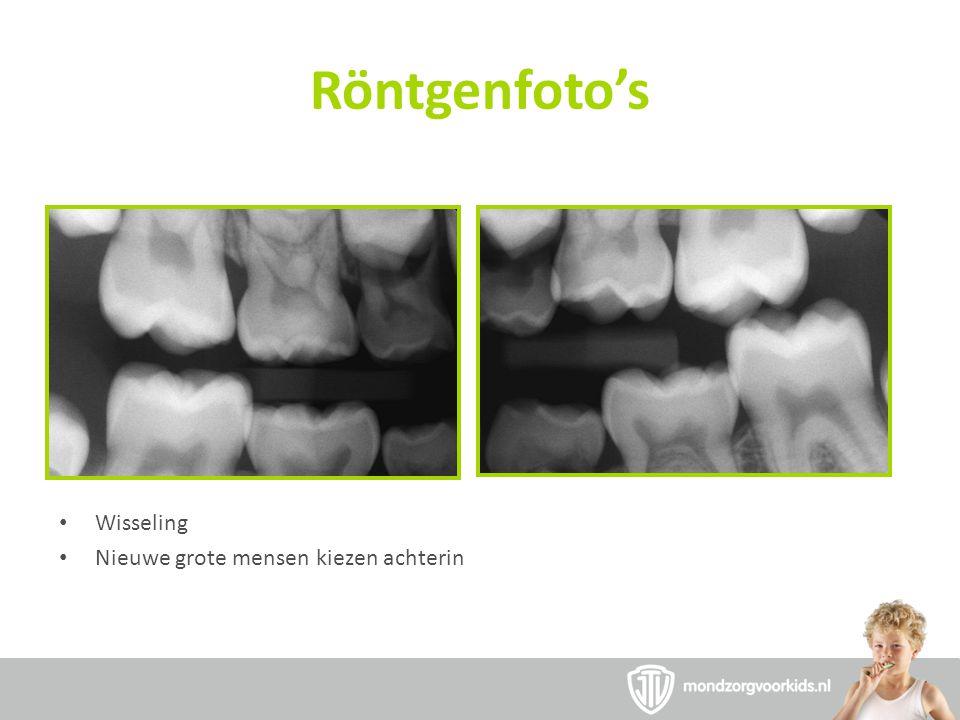 Röntgenfoto's Wisseling Nieuwe grote mensen kiezen achterin