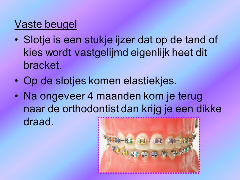 Vaste beugel Slotje is een stukje ijzer dat op de tand of kies wordt vastgelijmd eigenlijk heet dit bracket. Op de slotjes komen elastiekjes. Na ongev